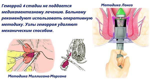 Схема лечения геморроидального узла