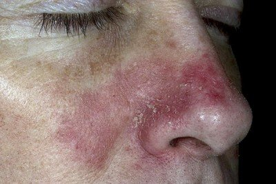 себорейний дерматит на обличчі фото
