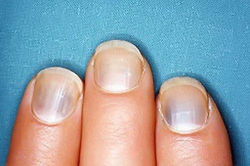 От чего ногти на ногах серого цвета