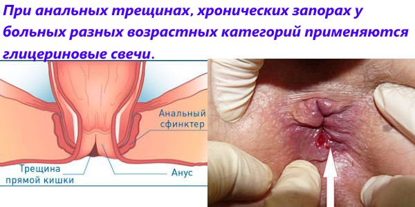 Анальная трещина и свищ лечение заболеваний прямой кишки