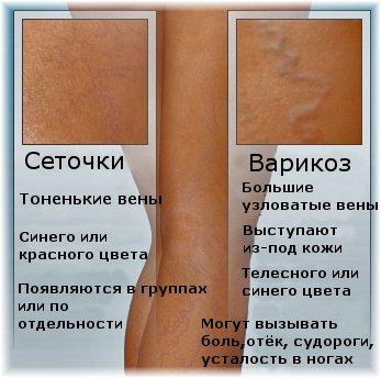 Венозная сетка на ногах у беременных 7