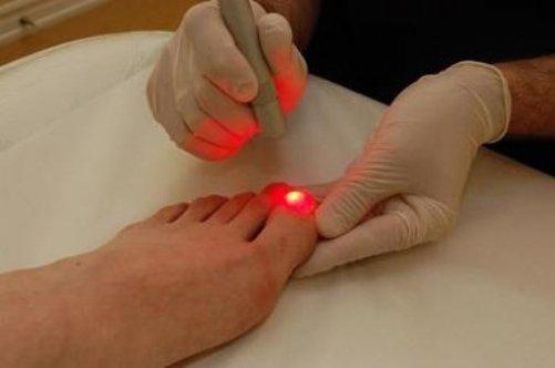 Удаление ногтя лазером