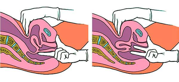 analniy-seks-rastyanutiy-anus