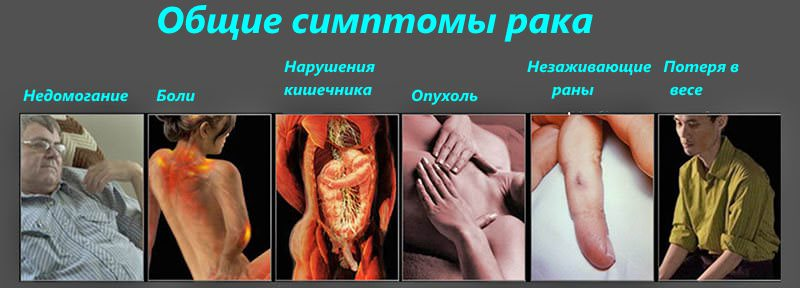 Консультация на тему - передаётся рак половым путём - здравствуйте.