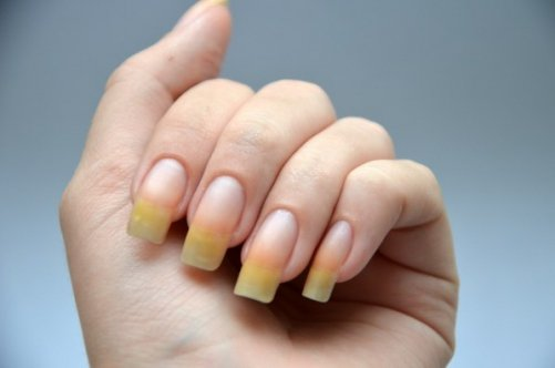 Что значит пожелтевшие ногти 22