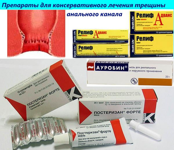 lechenie-hronicheskoy-analnoy-zadney-treshini