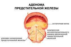 Лекарства от простатита на украине