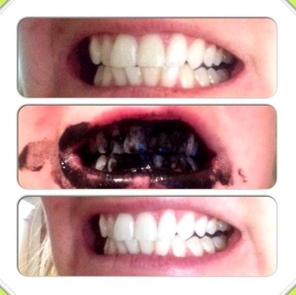 отбеливание зубов содой фото