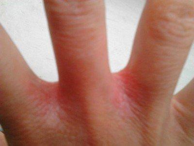 Между пальцев рук покраснение и зуд