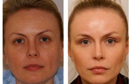 Лимфодренажный массаж лица фото до и после