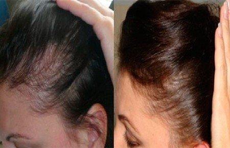 32e8534b6bb51ac2509f131bd5328e51 Мезотерапія голови: відгуки фото до і після