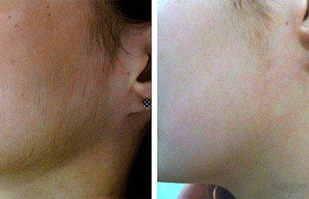 Фотоэпиляция на лице фото до и после
