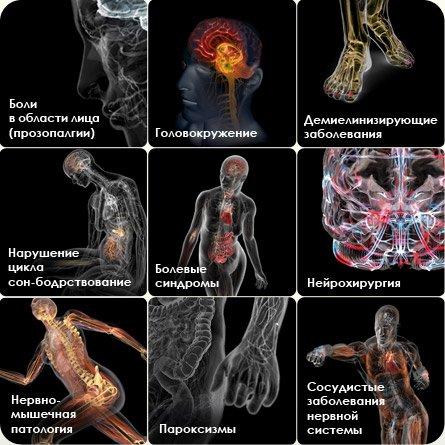 Синдром лермитта остеохондроз 40