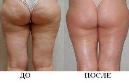 Результаты после антицеллюлитного массажа