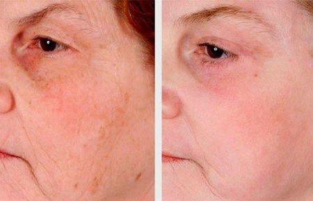 Крем после лазерной шлифовки лица