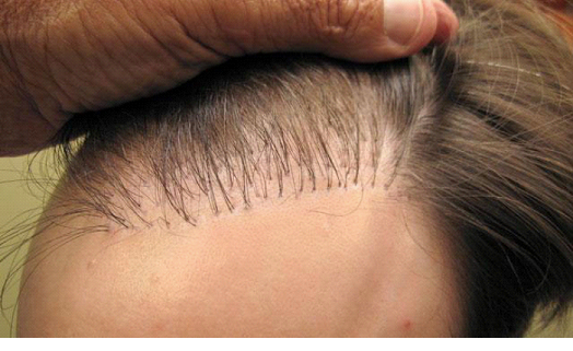 Рост пересаженных волос
