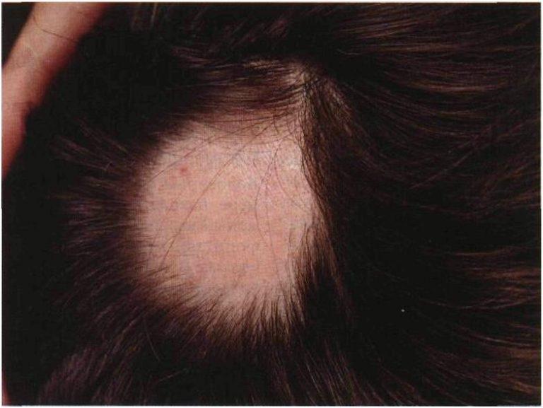 Болит кожа головы выпадают волосы что делать