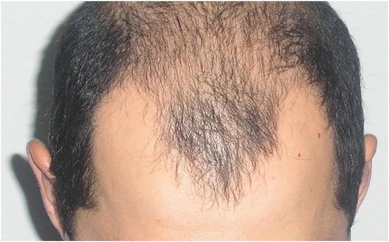 Выпадают волосы на теле у мужчин