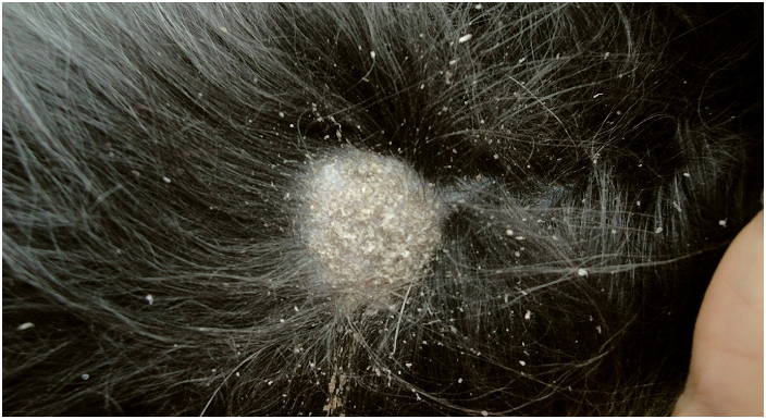 mazi-ot-seboreyniy-dermatit