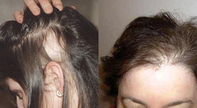 Очень сухие волосы что делать форум 4